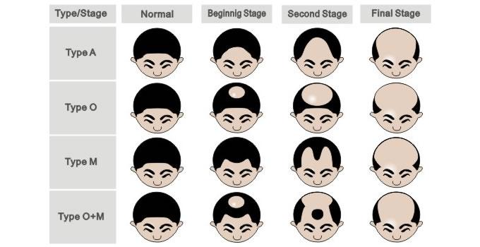 types of balding patterns