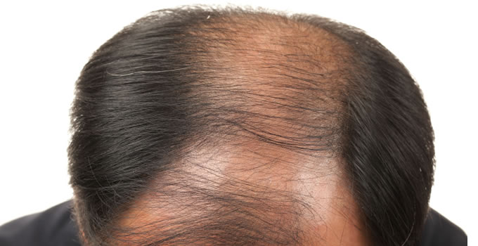 hair loss minoxidil