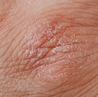 fungal infections on skin